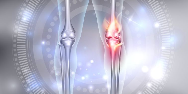 Osteoarthritis (OA) Advent Of New Medicine To Cure Osteoarthritis