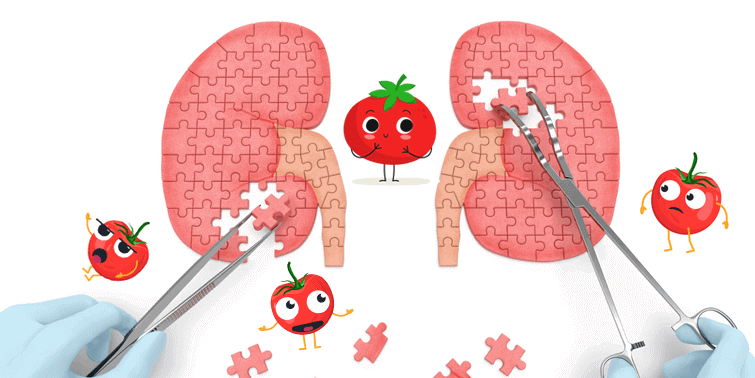 Kidney Stones Caused By Tomatoes Fallacy Or Fact