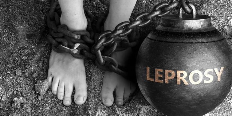 Leprosy (Hansen's Disease) Causes, Symptoms, Diagnosis, Treatment And Prevention