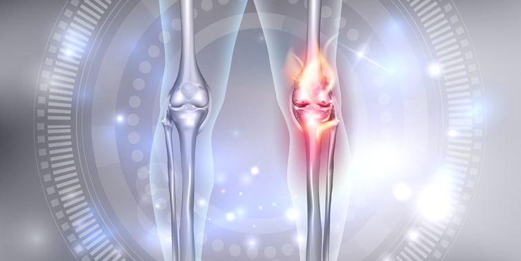 Osteoarthritis (OA) Advent Of New Medicine To Cure Osteoarthritis