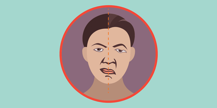 Bell's Palsy Causes, Symptoms, Diagnosis And Treatment, acute peripheral facial palsy