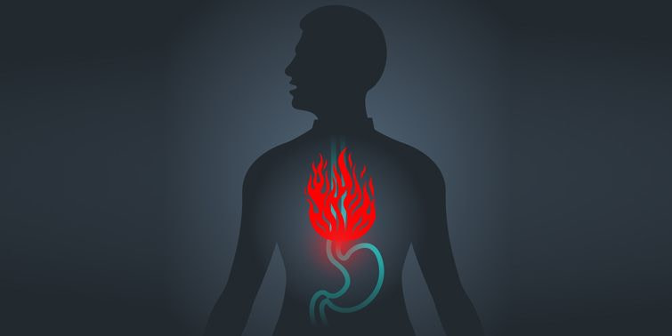 Dyspepsia Or Indigestion 5 Common Causes And Symptoms