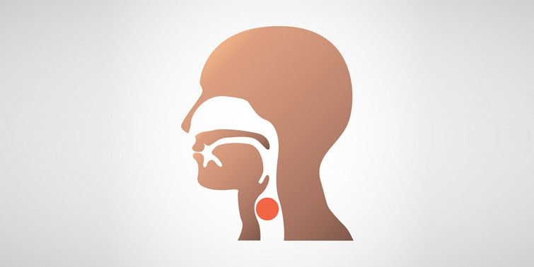Throat Cancer Causes, Symptoms, Diagnosis And Precaution