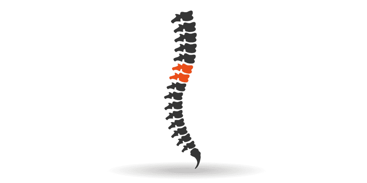 Spinal Cord Injury Causes And Prevention (World Spinal Cord Injury Day)