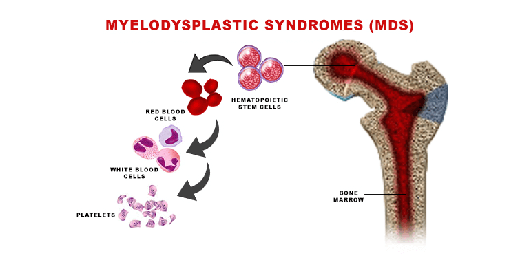 Myelodysplastic Syndromes (MDS) Causes, Symptoms, Diagnosis, Types And Treatments