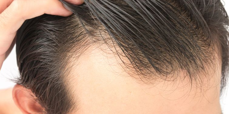 Androgenic Alopecia Or Male Pattern Baldness Symptoms, Causes and Treatment