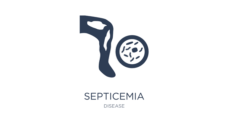 Septicemia Or Sepsis Causes, Symptoms, Treatment And Prevention