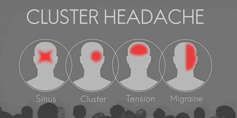 Cluster Headache Causes, Triggers, Symptoms And Treatment